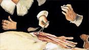 Der aufgeschnittene Arm - Die Anatomie Vorführung