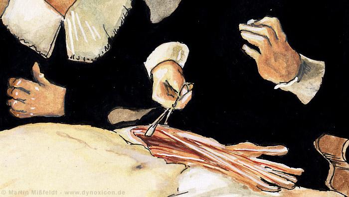 Der aufgeschnittene Arm - Die Anatomie Vorführung (aus: Anatomie des ...