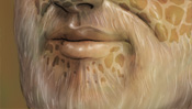 Mund und Bart, Flecken