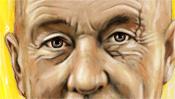 Baselitz Augen mit Narbe