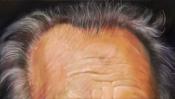 Stirn und Haare