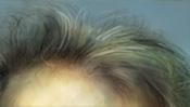 Fliehende Stirn (Eastwood)